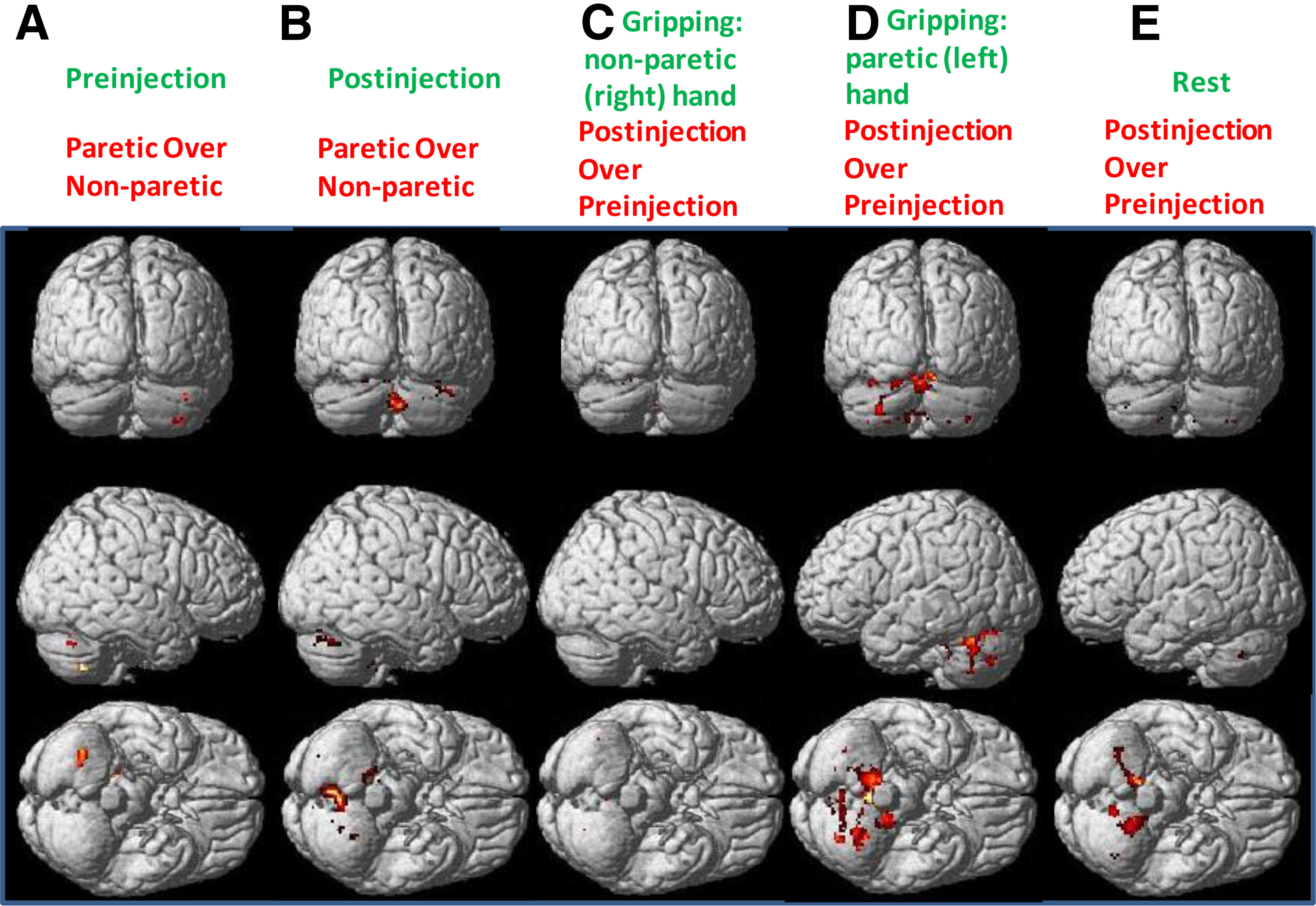 chronic stroke Function and use of the affected limb in adl in chronic stroke patients keywords: rehabilitation, stroke, sensorimotor stimulation, upper limb,.
